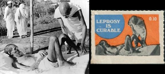 Mahatma Gandhi nursing the leper patient Parchure Shastri, Sevagram Ashram, 1939. Mahatma Gandhi bei der Behandlung des Lepra-Patienten Parchure Shastri im Sevagram-Aschram, 1939.