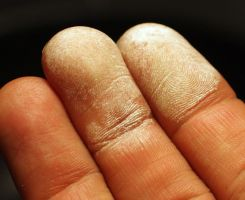 fingers with hydrogen peroxide damage | Chelsea Scrolls